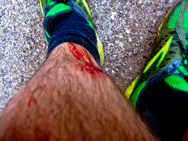 Bushwacking and boulder hopping lead to cuts, bruised, and tender shins. / とげのついた低木と石によってついた擦り傷、あざ、そして触ると痛い。